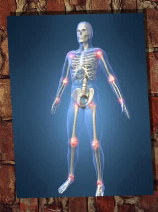Vitaminok, táplálék kiegészítők térdízületi problémákra | Györe Kerékpáristálló