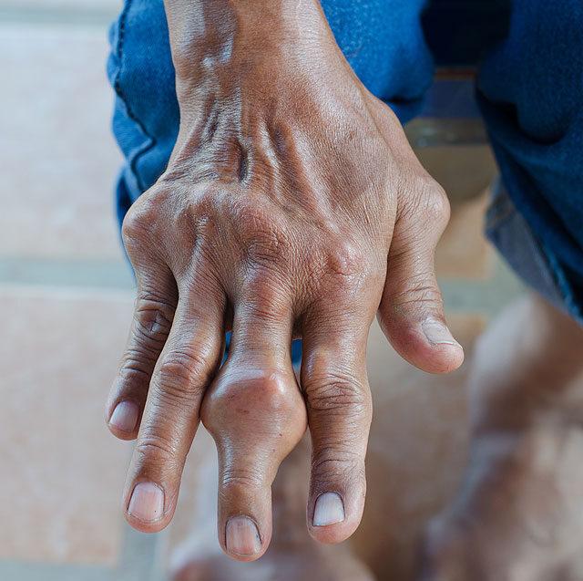 a kéz középső ujjának ízületei fájnak)