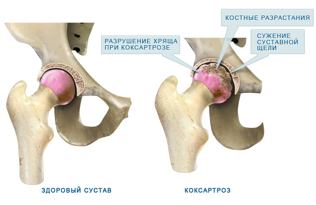 1 fokos kezelés a csípőízület deformáló osteoarthrosisában