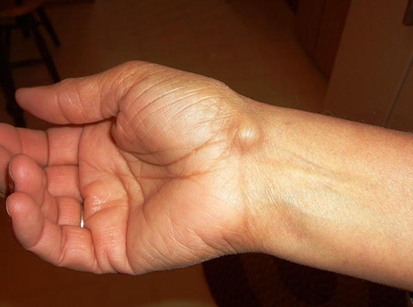 fő életkorral összefüggő ízületi betegségek