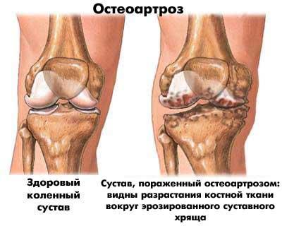 doa 1 fokos térdízület-kezelés)