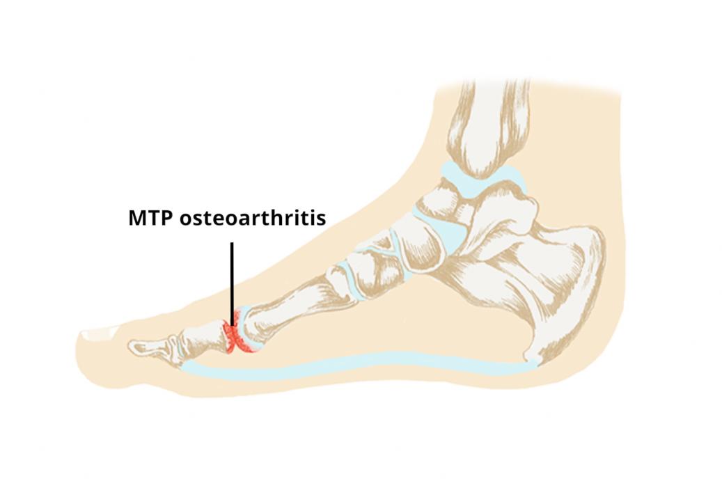 1st metatarsophalangeal joint osteoarthritis icd 10)