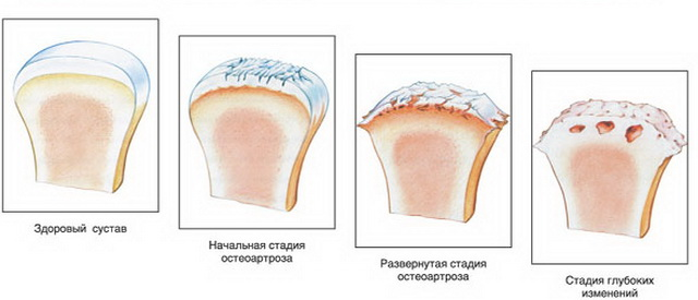 Ízületi fájdalom: a légkondi az oka? - EgészségKalauz