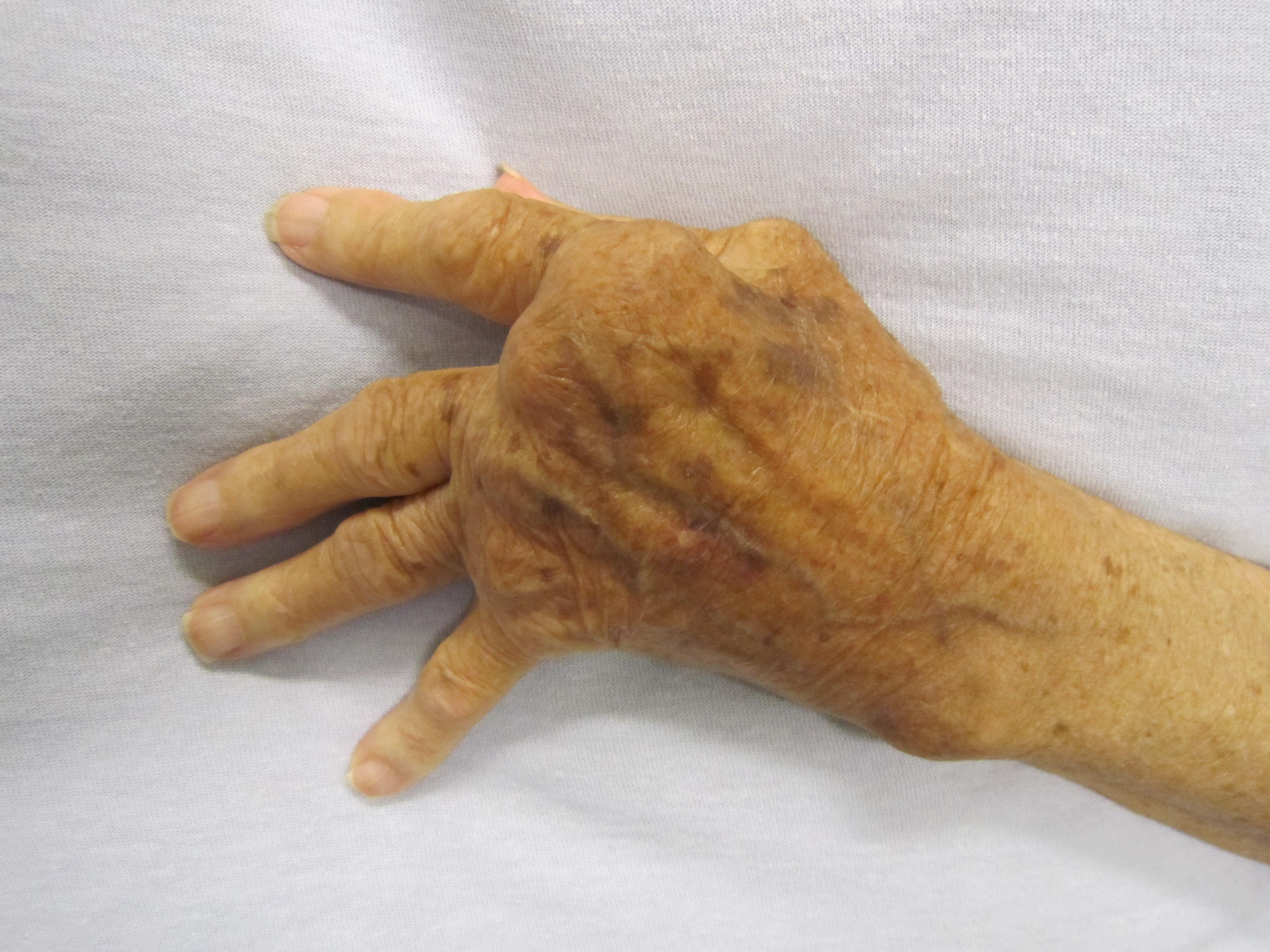 a mutatóujj artrózisa vagy ízületi gyulladása