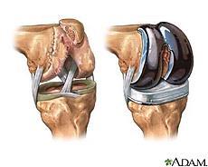 hónappal a térd artroplasztika után