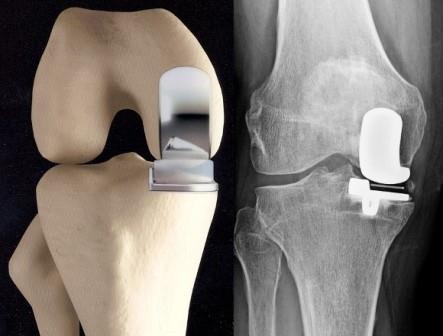 a térdízület gennyes artrózisa