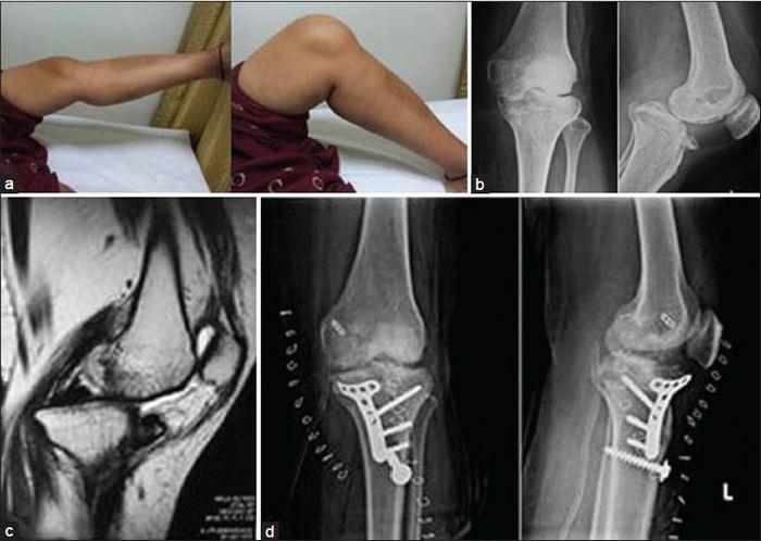 térd helyreállítása töréssel és elmozdulással a térd deformáló artrózisának okai