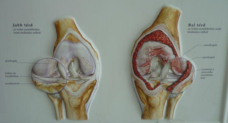 térdizület kollagén
