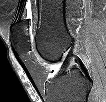 Az osteoarthritis kórismézése röntgenológiai és MRI ... - MRT-OS