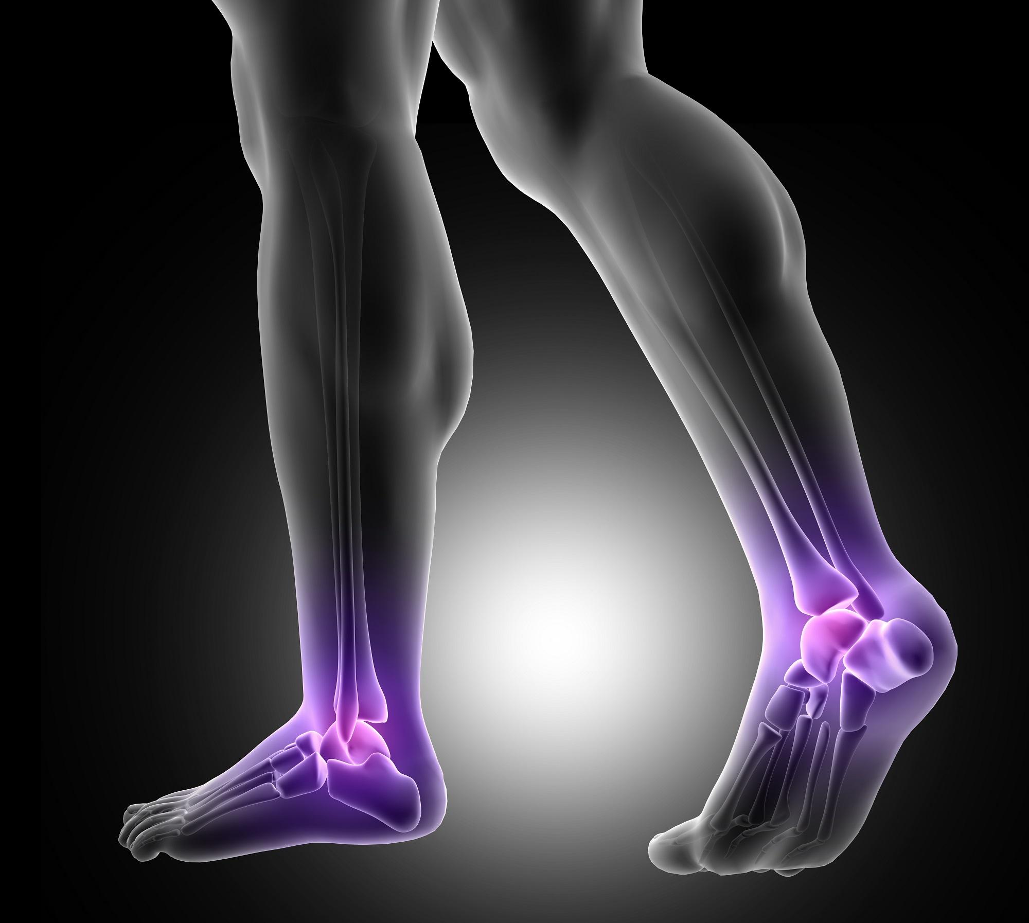 Gyakorlatok a lábízületek fájdalmához - Ízületi gyulladás áttekintés