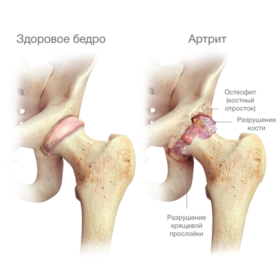 egyidejű fájdalom a csípő és a vállízületekben