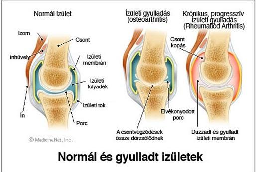 a térdízületek gyulladása okoz)