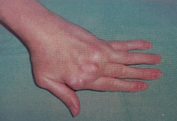 ujj-ízületi gyulladás kezelési áttekintés)