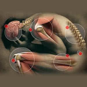 miért fáj az ízületi ízület térdpárnák a térdízület fájdalmához
