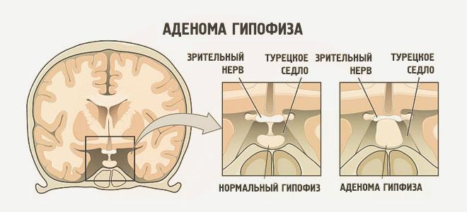 ízületi fájdalom hormonális kudarccal