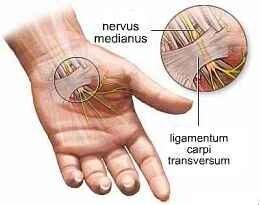 csukló sérülés szindróma)