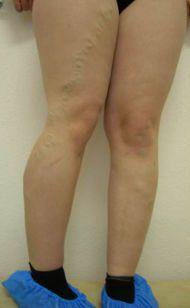 ízületi gyulladás és ízületi gyulladás, valamint a kezelés a lábujjak fájnak