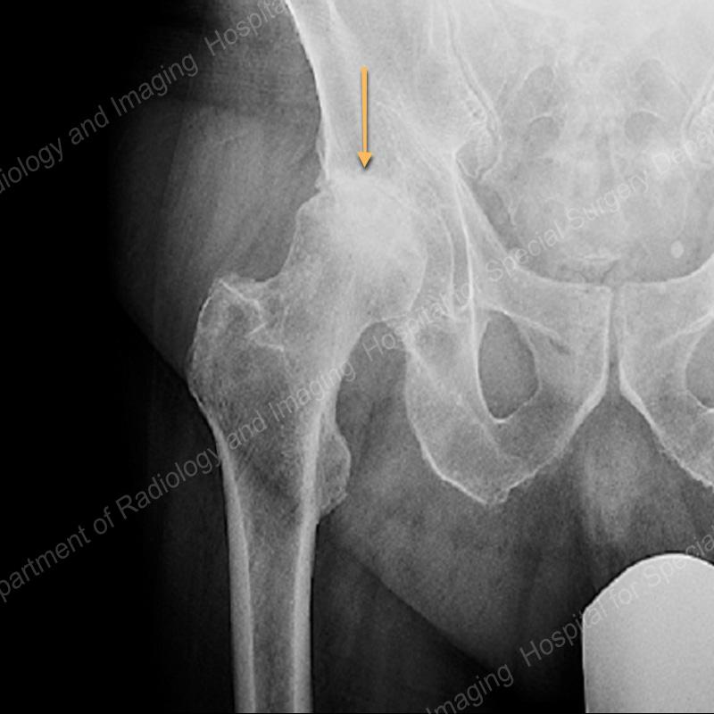 csípőízület periarthrosis kezelése kámfor olaj térdkezeléshez