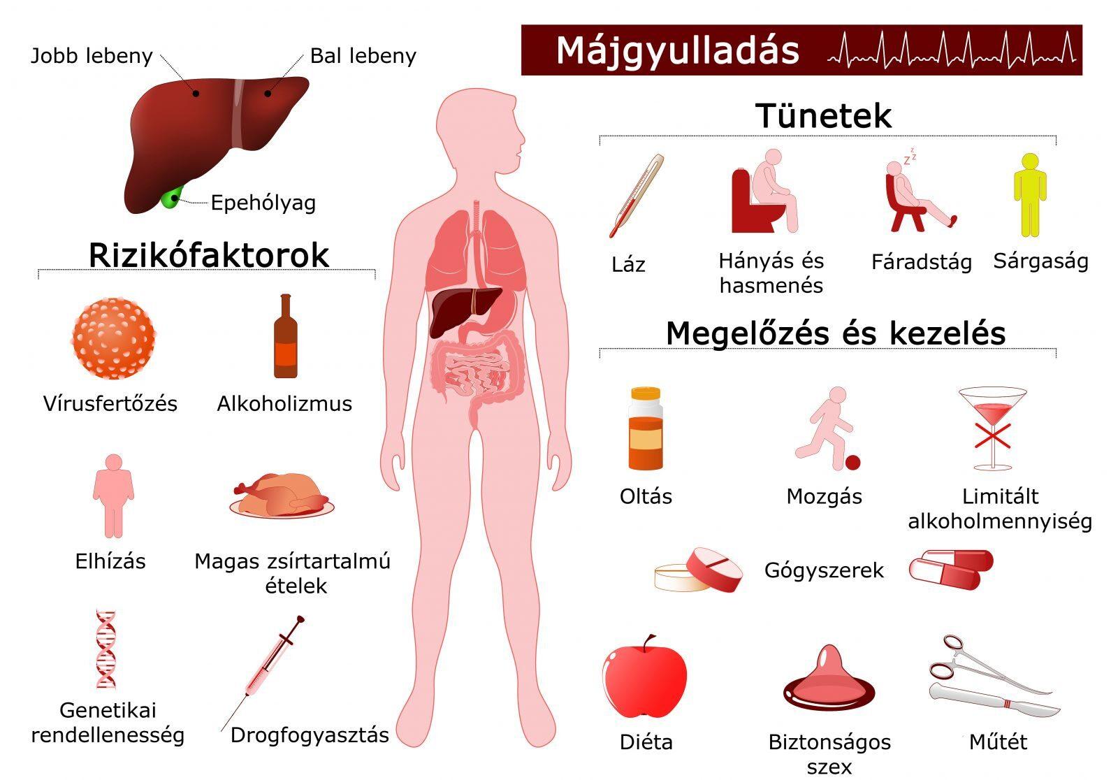 hepatitis ízületi fájdalom kezeléssel
