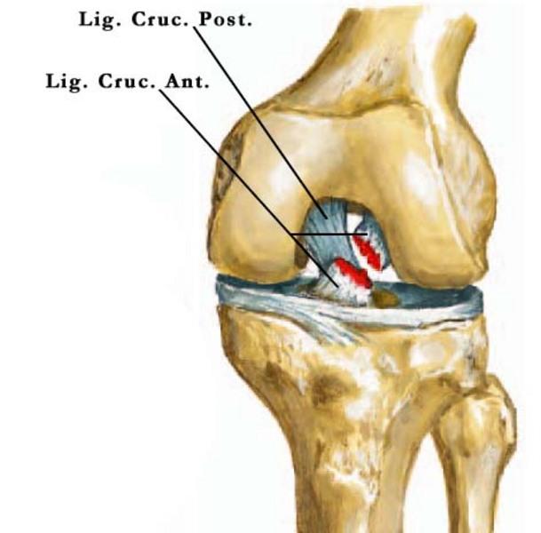 térdízület 2. fokozatának osteochondrosis