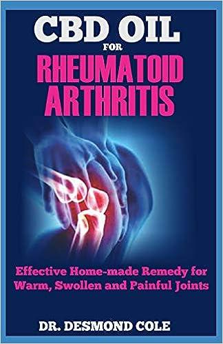 arthrosis cole kezelés