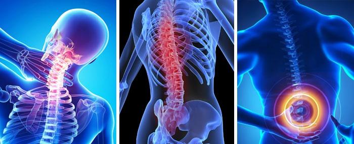 az osteochondrosis modern kezelési módjai
