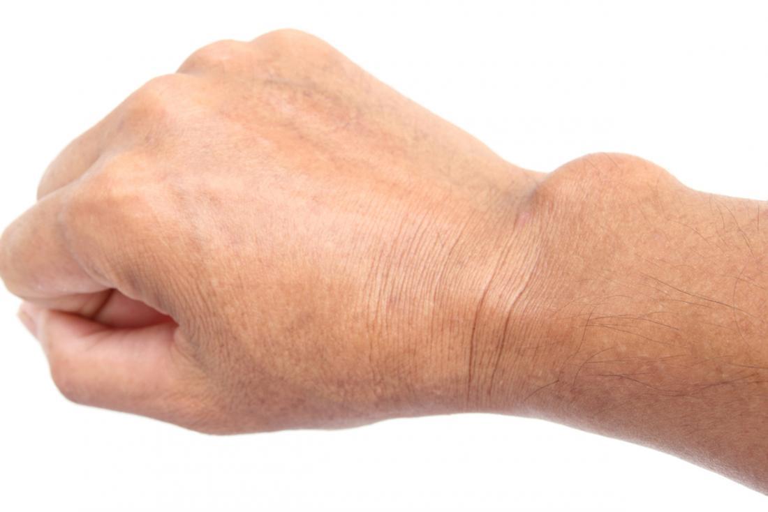 ízületi fájdalom a hüvelykujj kezén)