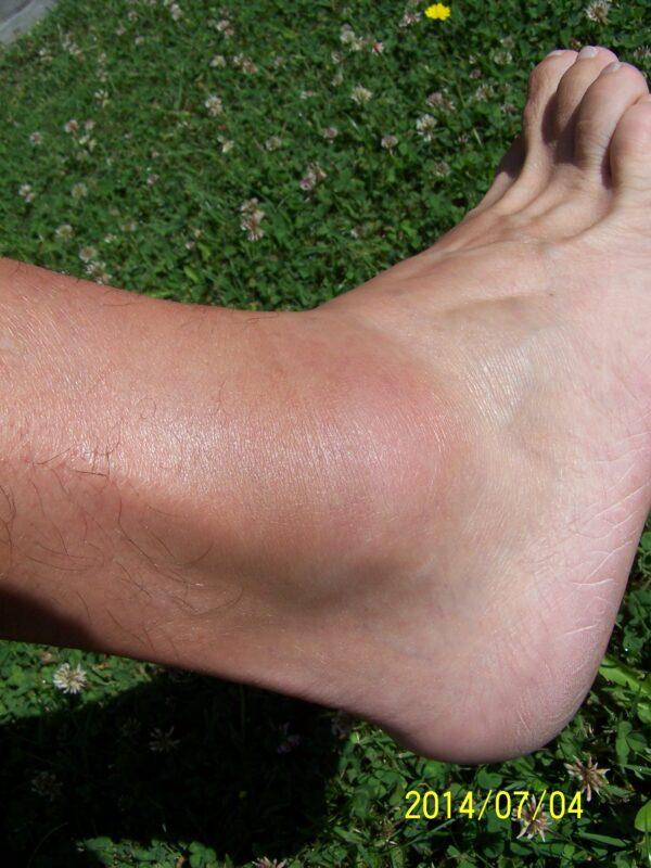 a bokaízület részleges szakadása lábbetegség ízületi ízületi gyulladás