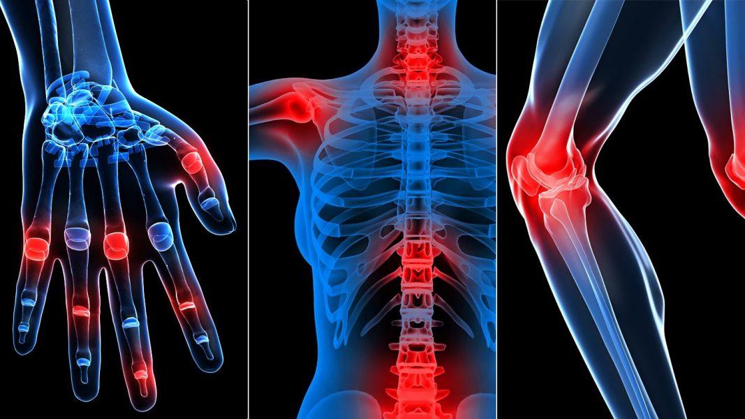 a csontok vagy ízületek az egész testen fájnak