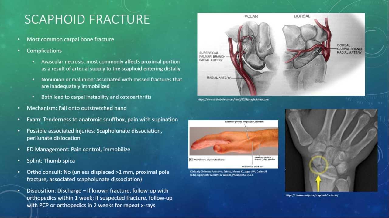 folyadékképződés a térdben sérülés után a vállízület gyulladása, mint a fájdalom enyhítése