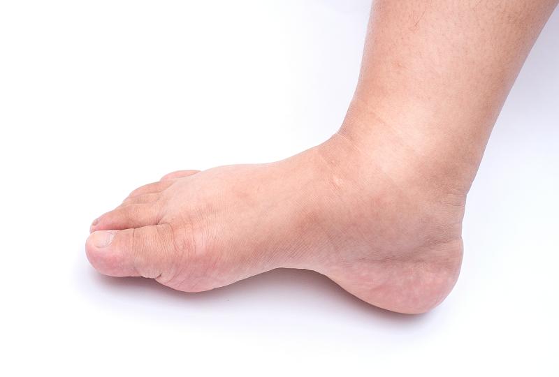 a lábak duzzanata a vesék miatt