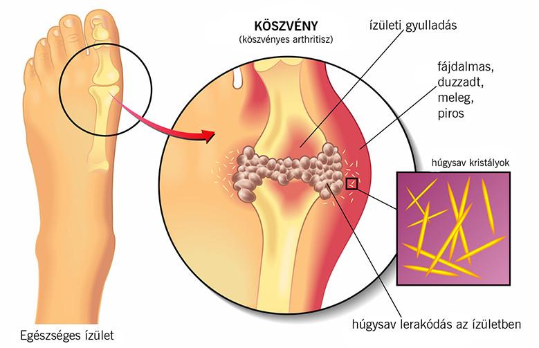 a második lábujj ízületének gyulladása)