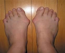 a nagy lábujj ízülete a bal lábán)