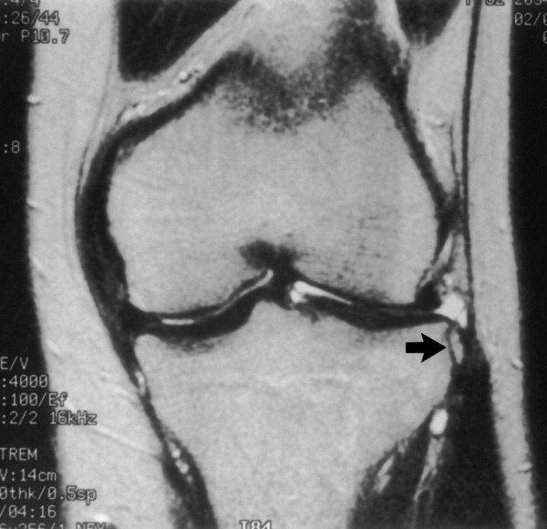a térd deformált artrózisának kezelési rendje)