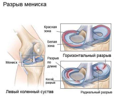térdízület diszlokáció kezelése fizikai gyakorlatok váll fájdalom