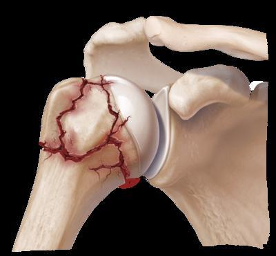 a vállízület sérülése esetén kötést kell felvinni)