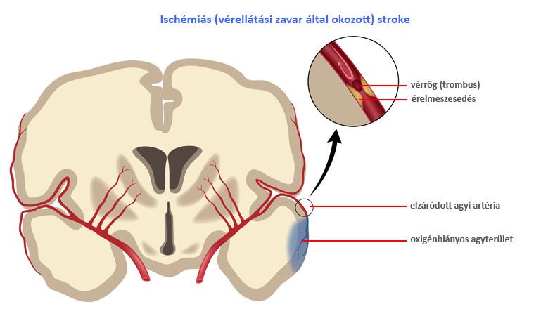 agyi bénulás ízületi problémái