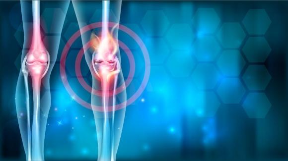 az ízületek fájnak a fekve artrózis kéz tünetek és kezelés