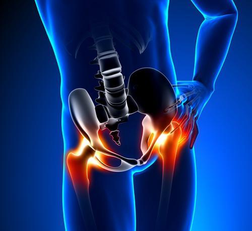 a csípőízületek fájó fájdalmainak oka