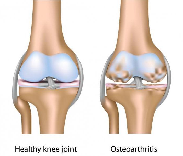 artrózis kezelése peptikus fekélygel