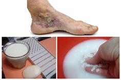 ízületi kezelés malachittal