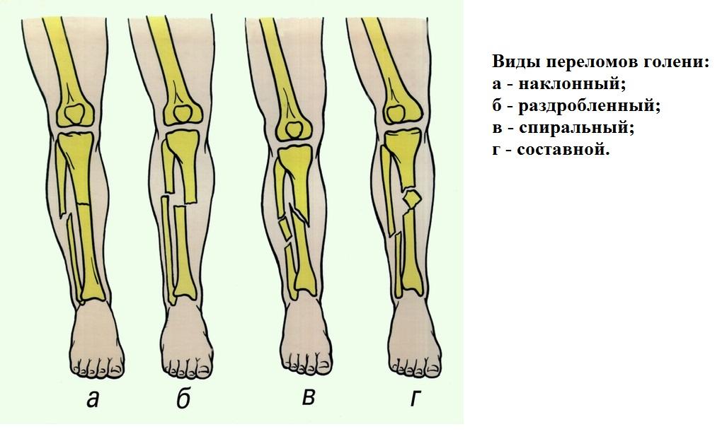 hogyan lehet kezelni a lábak osteoarthritiszét és duzzanatát ízületi ízületi kezelés dimexidummal