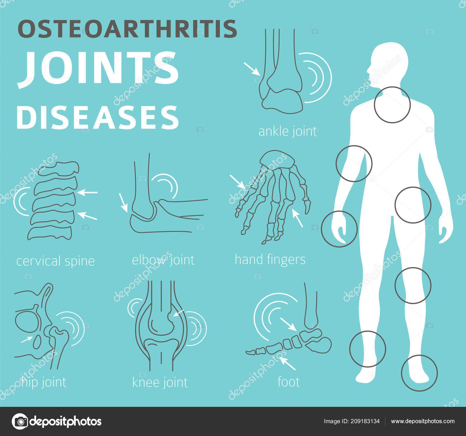 arthrosis kezelés sevastopolban)