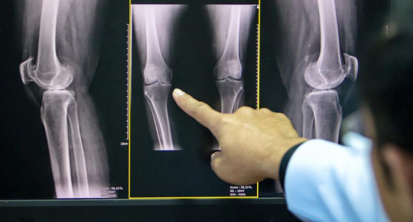 artrózis a térd kezelésében)