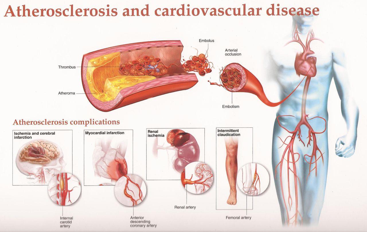 atherosclerosis ízületi fájdalom