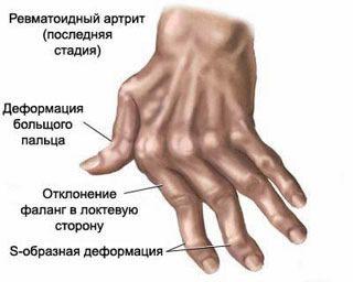 az ujjízület duzzanatát okozza)