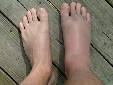 fájdalom a bokaízület meghosszabbítása során