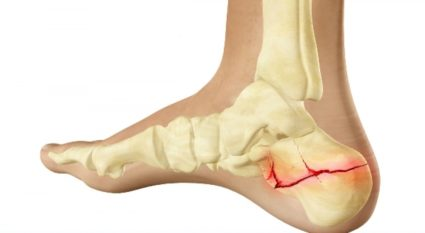 boka sérülések kezelési terve)