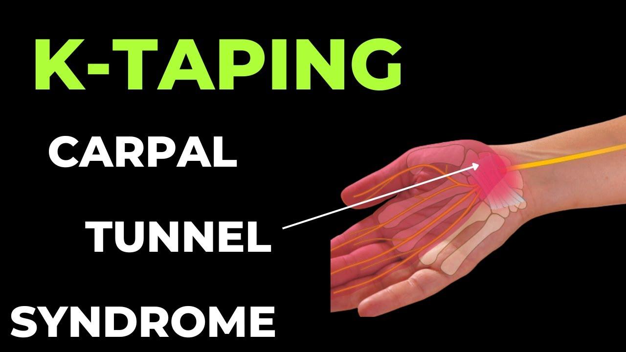 csuklószindróma de cervena kezelés ízületi gyulladás lehet duzzanat