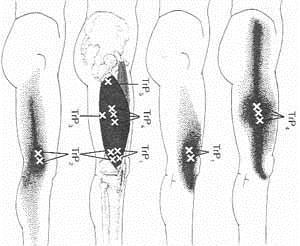szimmetrikus térdfájdalom